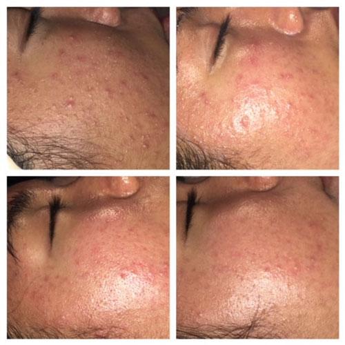 Ottawa Acne treatment