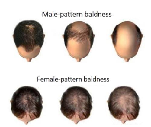 Ottawa Hair Loss Treatment Type